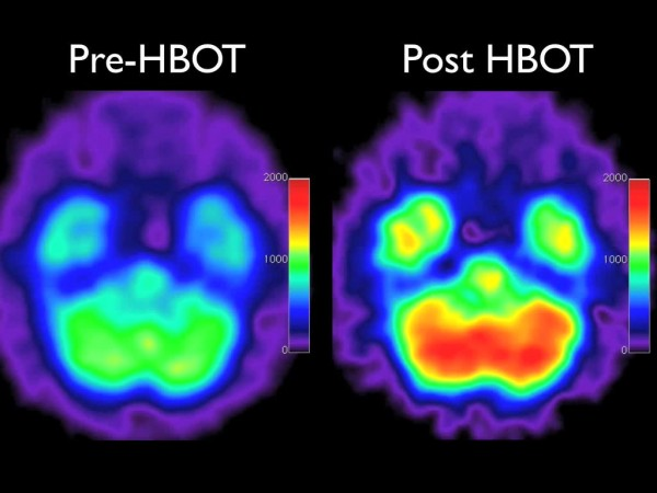 Brain Function after HBOT
