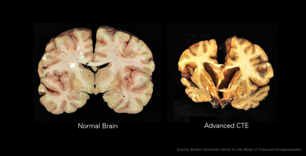 Chronic Traumatic Encephalopathy or CTE