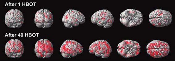 HBOT Brain Functionality Over Time